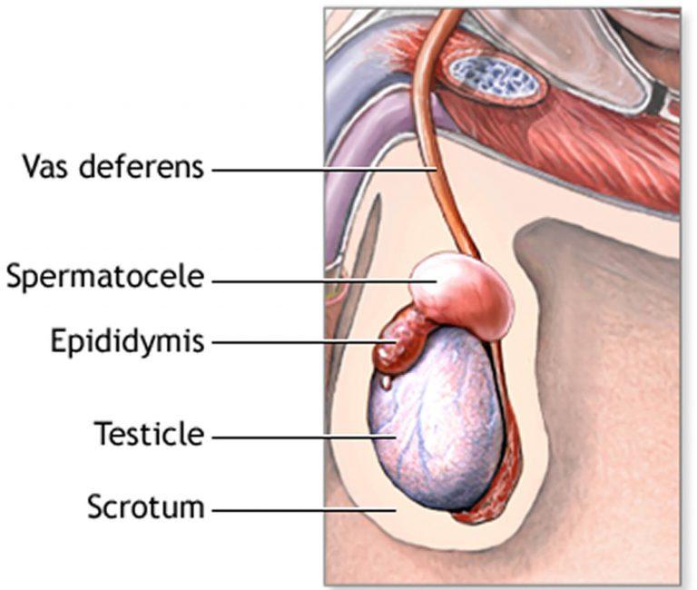 Spermatokele
